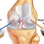 Хрустеть колени могут при артрозе