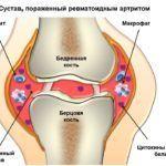 Лечение лазером поможет снять воспаление при артрите и убрать отеки сочленений