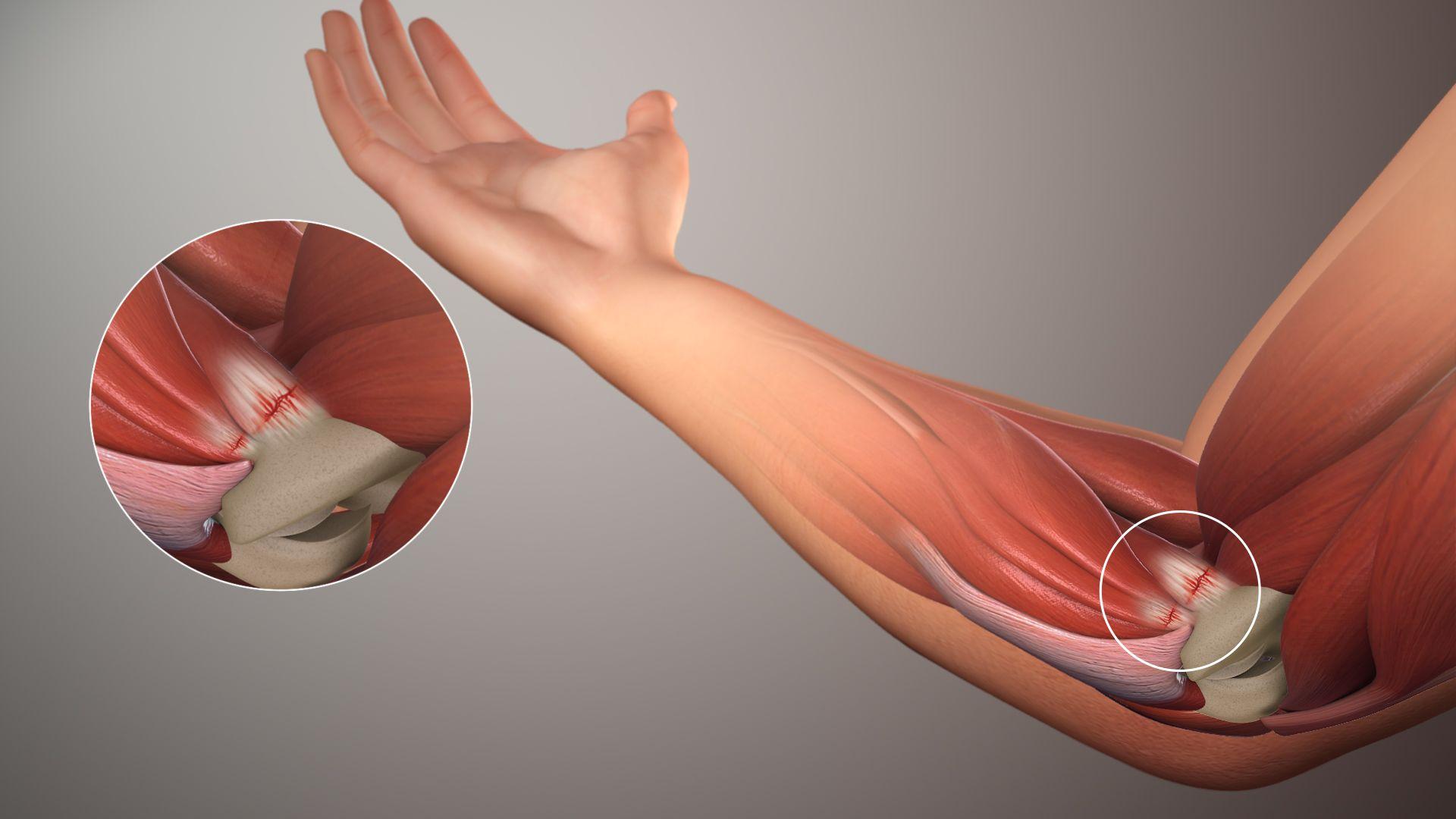 Артроз локтевого сустава — лечение различными методами