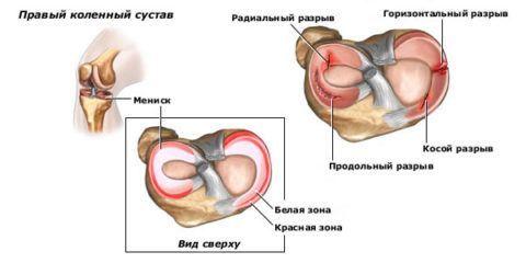 Мениски страдают при неловких и резких движениях