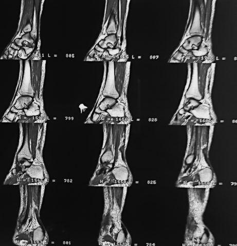 На МРТ обнаружен тендинит голеностопного сустава