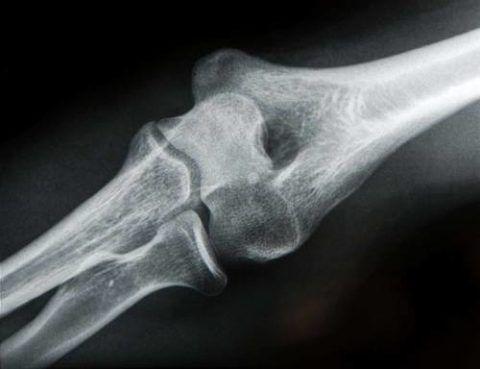 На рентгене выявлен артроз локтевого сустава, лечение которого начнется сразу после установления окончательного диагноза
