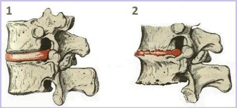 На рисунке – позвонки в норме (1) и позвонки, поражённые спондилезом (2)