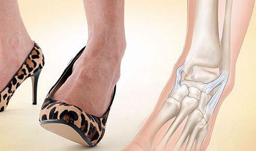 Разрыв связок голеностопного сустава: характерные симптомы
