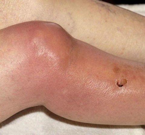 Остеомиелит можно назвать самым тяжелым заболеванием коленей