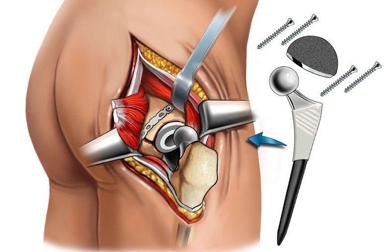 Восстановление после эндопротезирования тазобедренного сустава – особенности реабилитации пациентов
