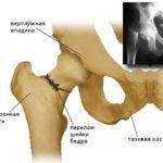 Перелом шейки бедра в пожилом возрасте может и не срастись, поэтому хирургических методов в таком случае не избежать