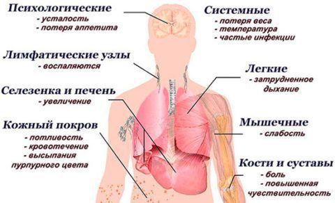 При лейкозе могут болеть суставы и повышаться температура.