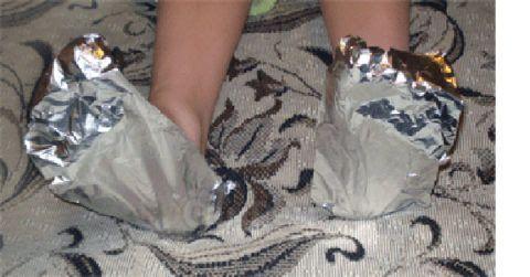При отложении солей фольгой обматывают ступни или кисти рук.