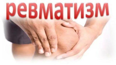 При ревматизме часто ломит разные суставы.