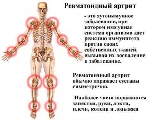 При ревматоидном артрите часто поражаются несколько сочленений одновременно.
