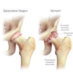 При ревматоидном артрите могут быть значительно поражены и тазобедренные суставы