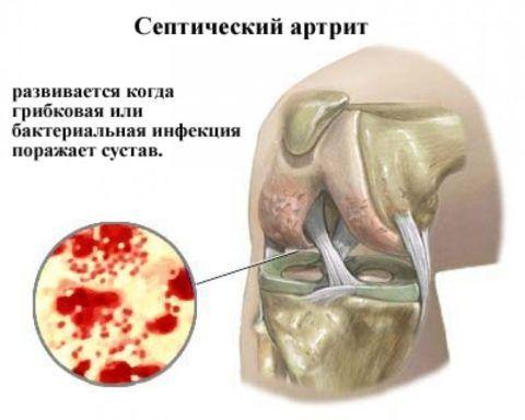 При септическом артрите человек чувствует сильные жжение и боль в сочленениях.