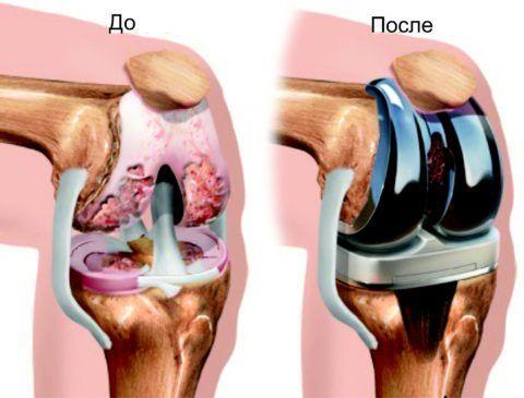 При сильном разрушении сустава (когда он болит практически постоянно) показано эндопротезирование (как на фото).
