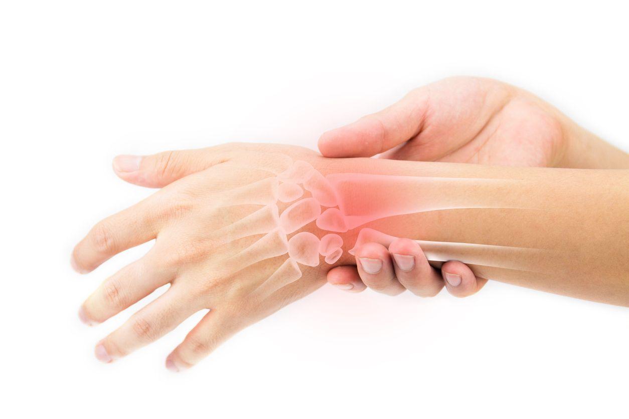 Какие причины вызывают синовит лучезапястного сустава, как протекает заболевание