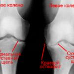 Рентген наиболее часто применяют для диагностики гонартроза коленей