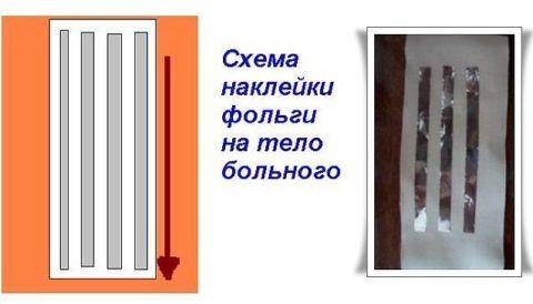 Серебряные мостики на лейкопластыре оздоровят больной участок тела.