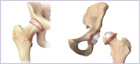 Тазобедренный сустав – здоровый и поражённый костными наростами