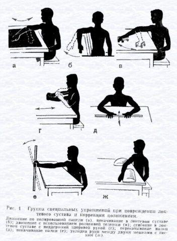 Упражнения при артрозе локтевого сустава не должны вызывать боль