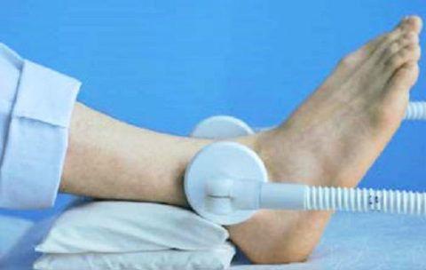 УВЧ при травмах тяжей голеностопа