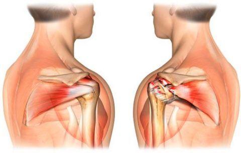 Вид нормального сухожилия (слева) вращательной манжеты и разорванного (справа)