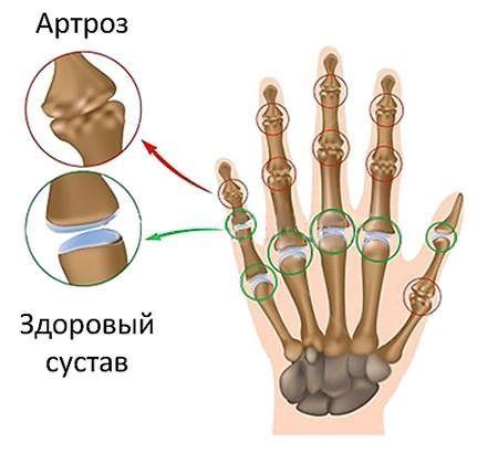 Артроз межфаланговых суставов рук чаще всего возникает у женщин.