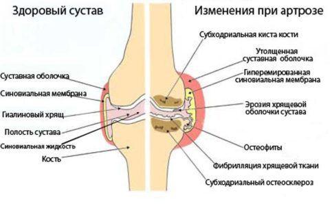 Часто артроз коленного сустава возникает у лиц с лишним весом и профессиональных спортсменов.