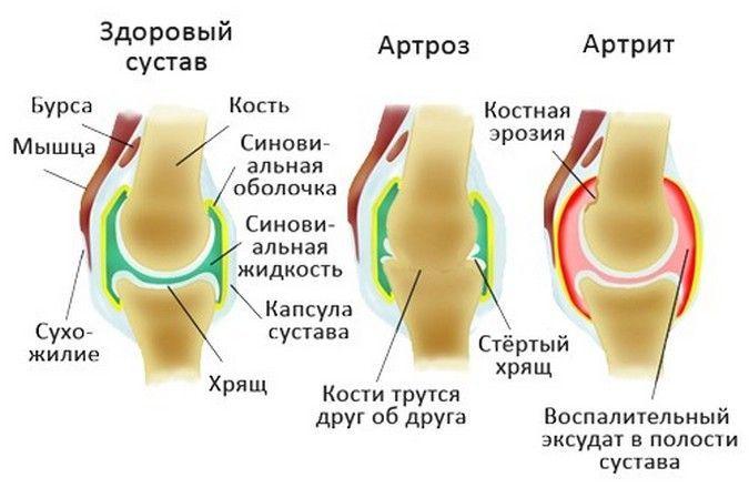 Артроз суставов – чем лечиться?