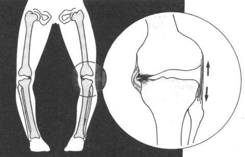 Дисплазия – это неправильное формирование структур сустава и надколенника