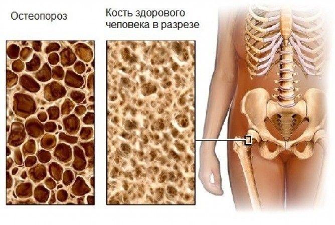 Как лечить остеопороз различными методами?