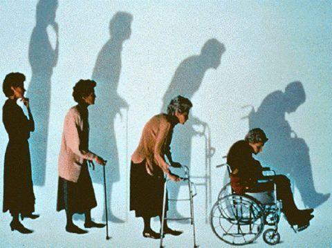 На четвертой стадии разрушения костей могут появляться переломы, которые уже не срастаются, что и приводит больного к инвалидному креслу.