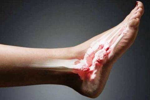 На фото – артропатические изменения хрящевой и костной ткани