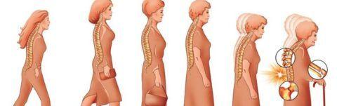 Об остеопорозе может свидетельствовать уменьшение роста человека, искривление позвоночного столба.