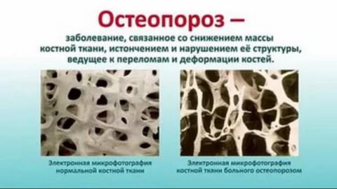 Остеопороз бывает первичный и вторичный.