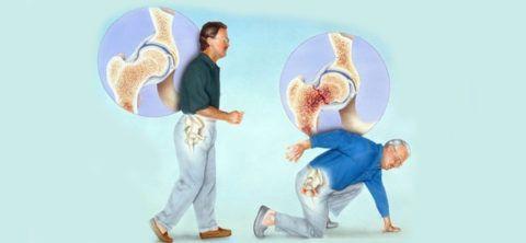 Остеопороз часто развивается незаметно, пока не достигнет 3 - 4 стадии и кости станут излишне хрупкими – могут возникать переломы даже при небольшом травмировании.