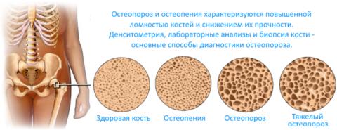 Остеопороз имеет свою классификацию по тяжести недуга.