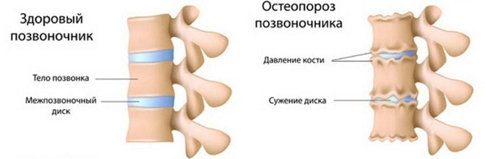 Остеопороз позвоночника: симптомы, степени, лечение традиционными и народными методами