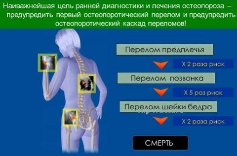 При остеопорозе могут возникать различные переломы.