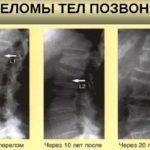 При прогрессирующем остеопрозе наблюдаются изменения на рентгеновских снимках с течением времени