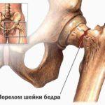При прогрессирующем разрушении костей повышается риск возникновения переломов