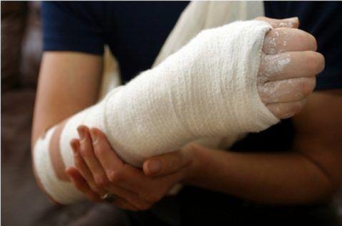 Простые травмы лечат гипсовой повязкой