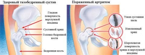 Разрушение хрящевой ткани при артрите