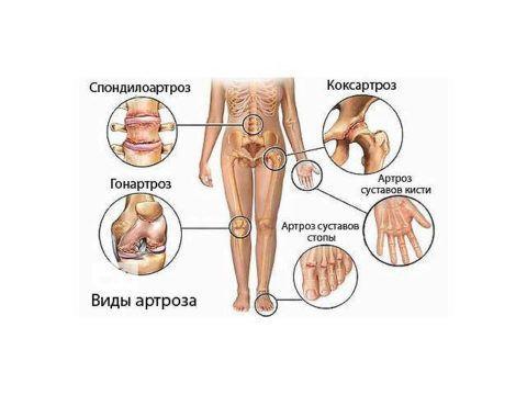Существует несколько видов артроза.
