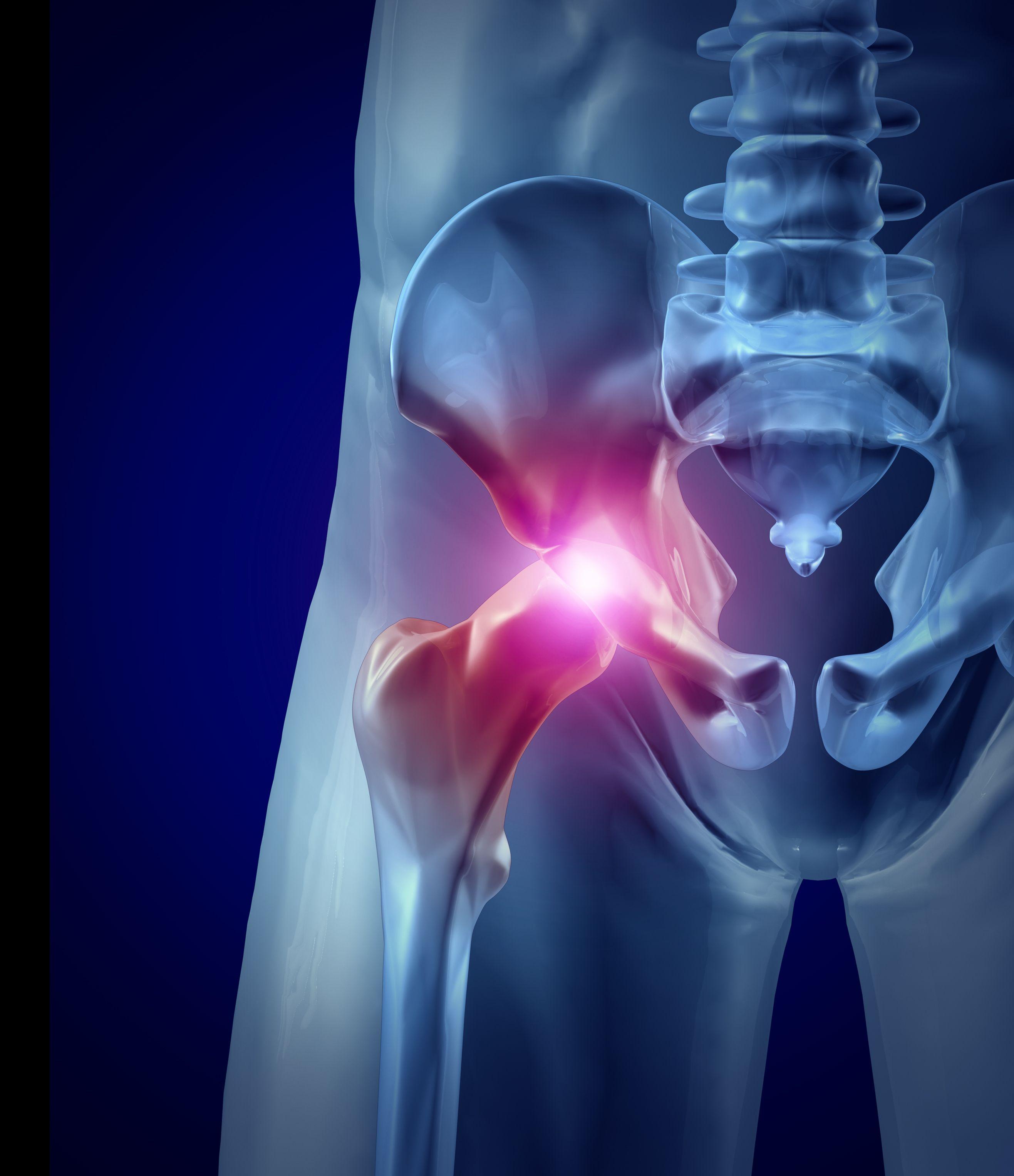 Вывих тазобедренного сустава: насколько опасна травма