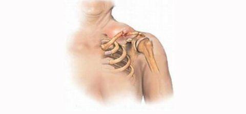 Перелом или трещина? Активные травмы бывают разными