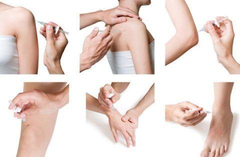 Уколы полимерной гиалуроновой кислоты применяются при артрозах всех суставов