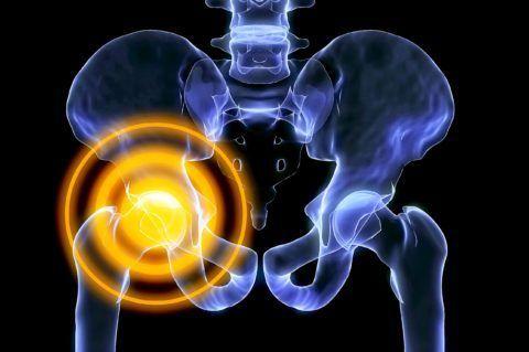 Разберем основные причины возникновения хруста и боли в ТБС, в том числе и при поднятии ноги
