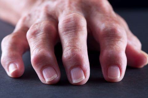 Артроз – одно из распространенных заболеваний среди пожилых людей
