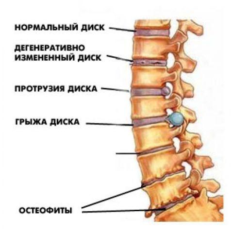 Болезни позвоночника, в том числе остеофиты