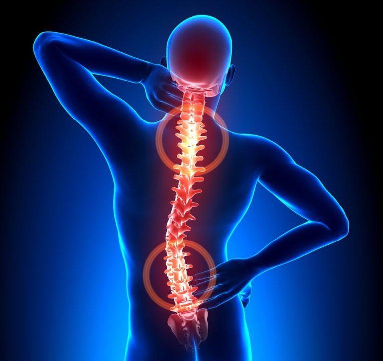 Остеохондроз что болит в организме